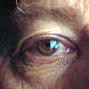 Glaucoma Risk