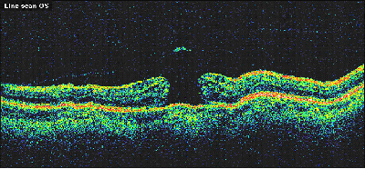 OCT Image of a Macular Hole